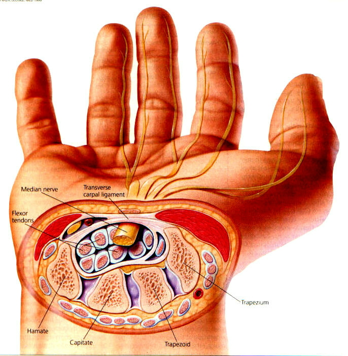 Carpal Tunnel Syndrome Pain Prevent